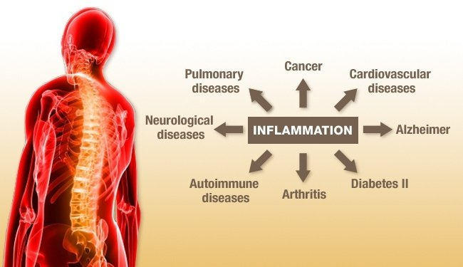 http://www.garmaonhealth.com/wp-content/uploads/2014/08/diseases-caused-by-inflammation.jpg