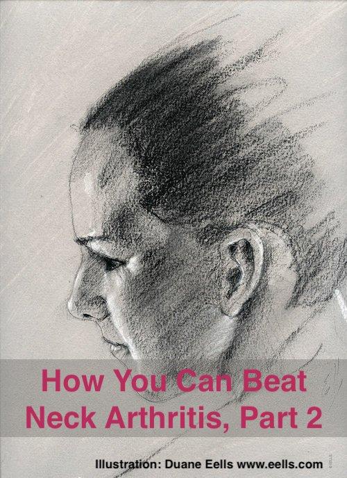 How You Can Beat Neck Arthritis, Part 2